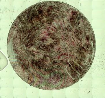 Von Kossa staining showing phosphate deposition from human mesenchymal stem cells, a primary step in bone development. Image by Jake Hay and Aleixandre Rodrigo-Navarro