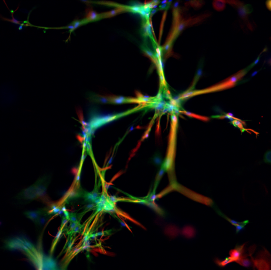 Astrocytes growing through a 3D synthetic polymer hydrogel to form connections with each other. Stained for immunofluorescent microscopy in green for actin, blue for nuclei and red for GFAP, an astrocyte marker.